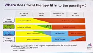 Focal Therapy Paradigm